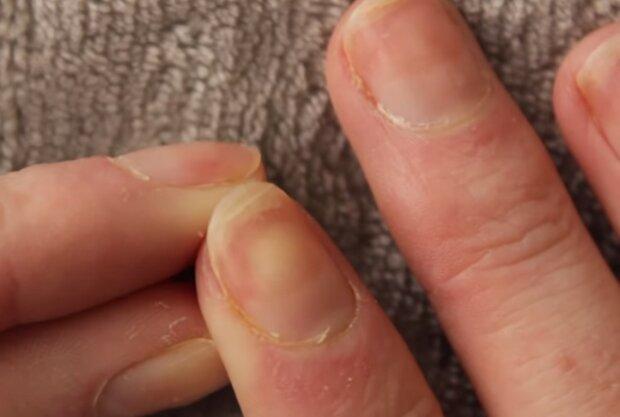 Zniszczone paznokcie/screen YouTube @Isabella Demarko
