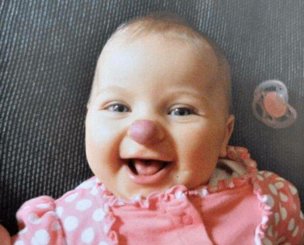 """Urodziła się z ,,nosem klauna"""". Po kilku latach jej wygląd jest kompletnie inny"""