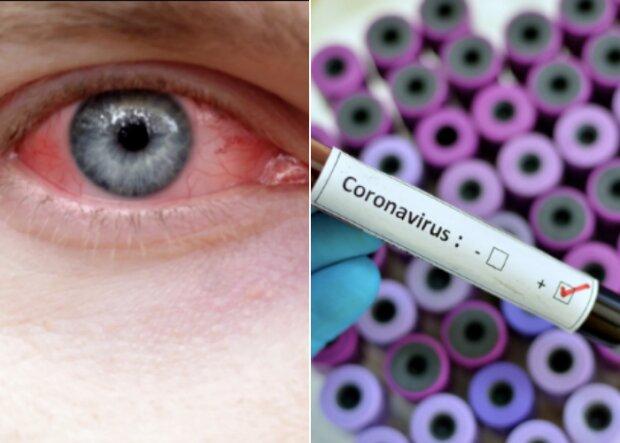 Zapalenie spojówek jednym z objawów koronawirusa